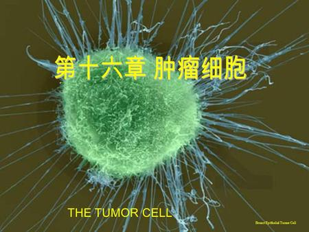THE TUMOR CELL Breast Epithelial Tumor Cell.