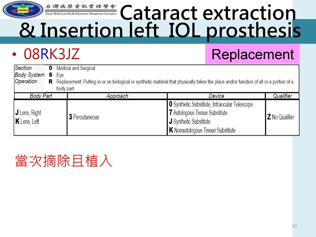 Cataract extraction & Insertion left IOL prosthesis