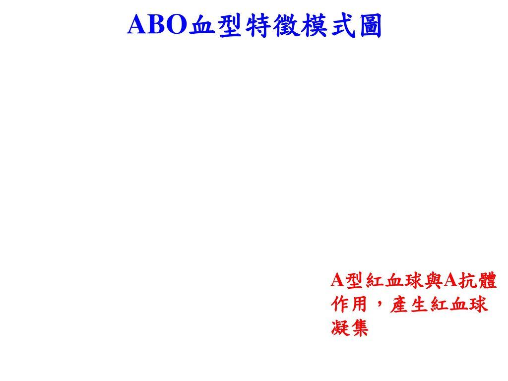 ABO血型特徵模式圖 A型紅血球與A抗體 作用,產生紅血球凝集