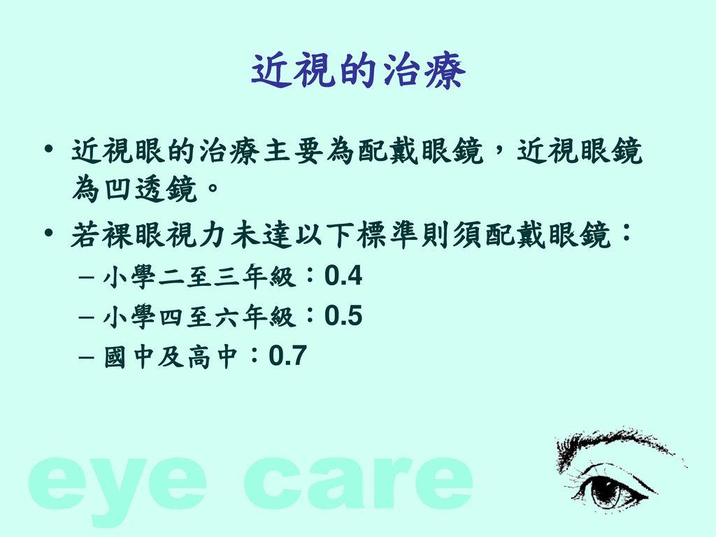 近視的治療 近視眼的治療主要為配戴眼鏡,近視眼鏡為凹透鏡。 若裸眼視力未達以下標準則須配戴眼鏡: 小學二至三年級:0.4
