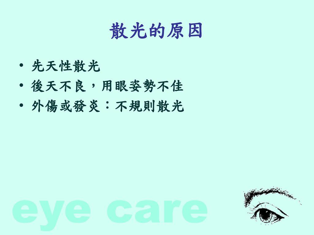 散光的原因 先天性散光 後天不良,用眼姿勢不佳 外傷或發炎:不規則散光