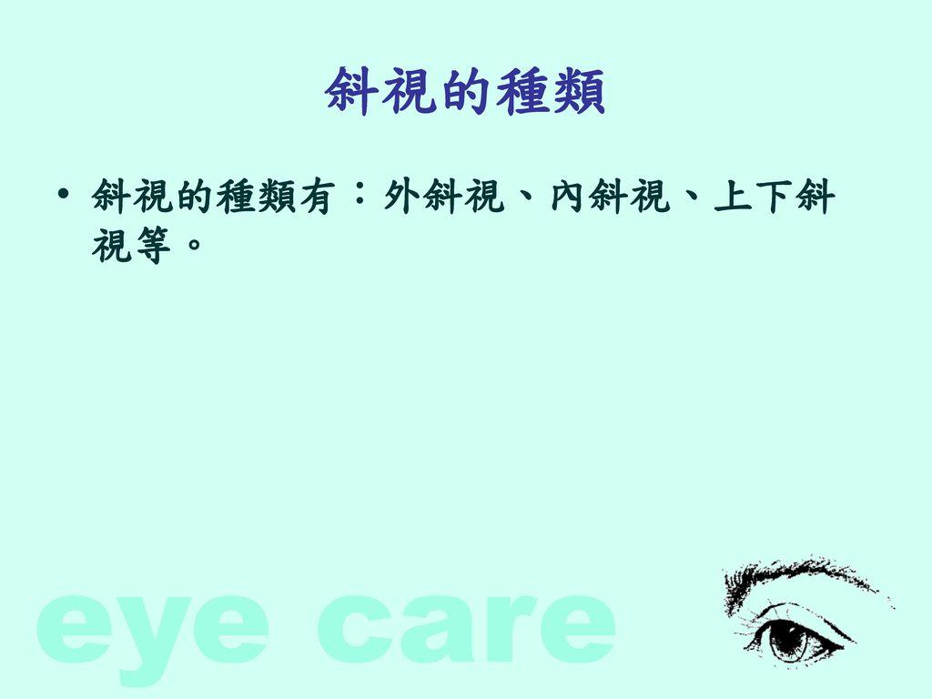斜視的種類 斜視的種類有:外斜視、內斜視、上下斜視等。
