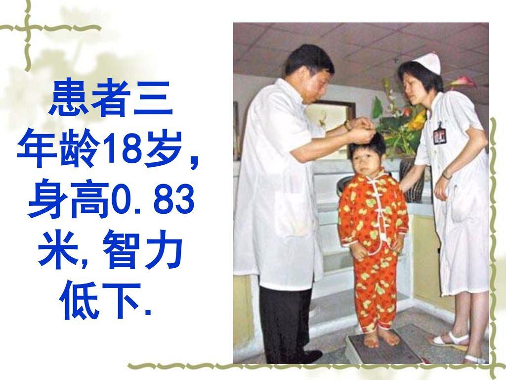 患者三 年龄18岁,身高0.83米,智力低下.
