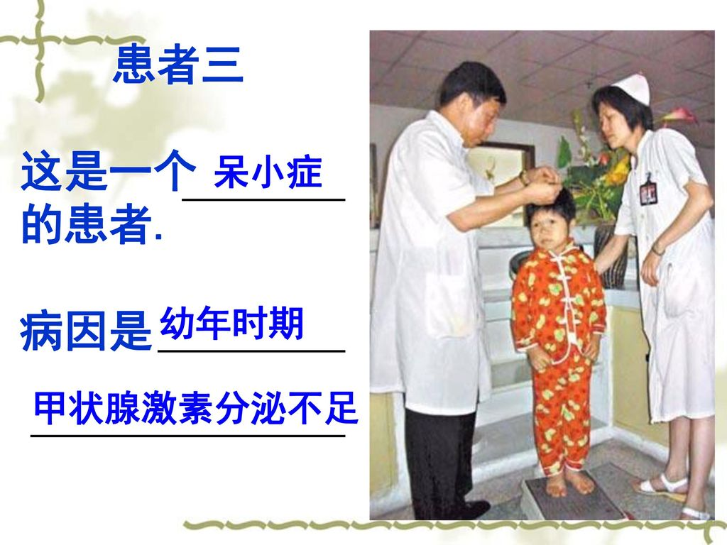 患者三 这是一个 的患者. 病因是 呆小症 幼年时期 甲状腺激素分泌不足