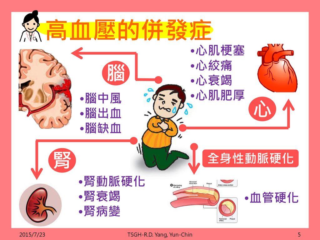 高血壓的併發症 腦 心 腎 •心肌梗塞 •心絞痛 •心衰竭 •心肌肥厚 •腦中風 •腦出血 •腦缺血 全身性動脈硬化 •腎動脈硬化 •腎衰竭