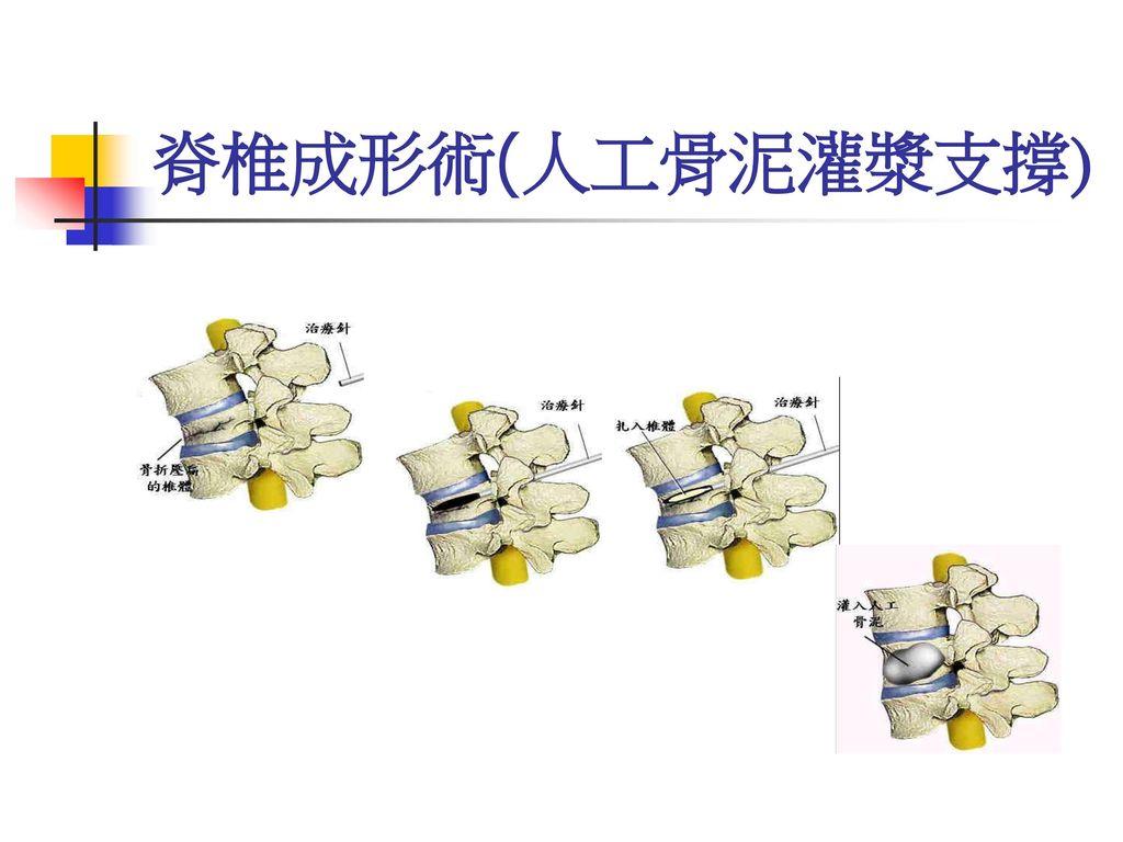 脊椎成形術(人工骨泥灌漿支撐)
