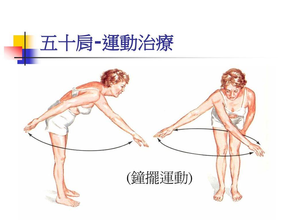 五十肩-運動治療
