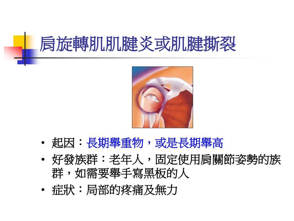 肩旋轉肌肌腱炎或肌腱撕裂 起因:長期舉重物,或是長期舉高 好發族群:老年人,固定使用肩關節姿勢的族 群,如需要舉手寫黑板的人