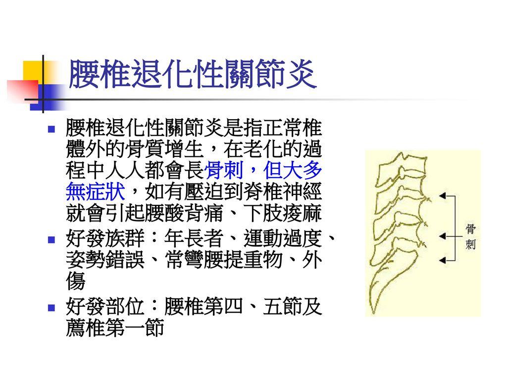 腰椎退化性關節炎 腰椎退化性關節炎是指正常椎 體外的骨質增生,在老化的過 程中人人都會長骨刺,但大多 無症狀,如有壓迫到脊椎神經 就會引起腰酸背痛、下肢痠麻. 好發族群:年長者、運動過度、 姿勢錯誤、常彎腰提重物、外 傷.
