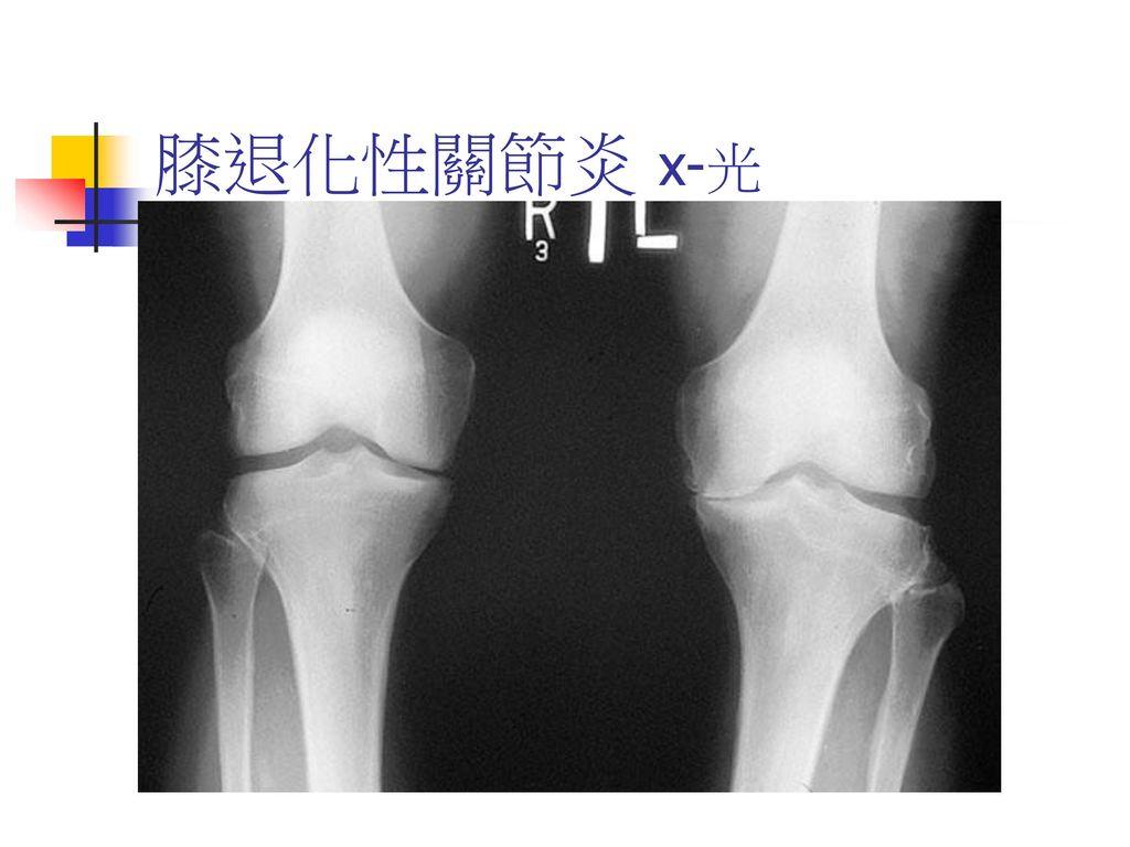 膝退化性關節炎 x-光