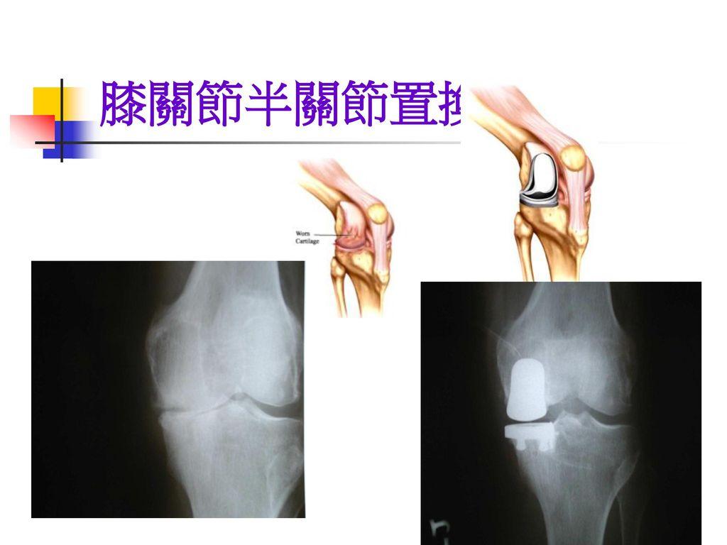 膝關節半關節置換