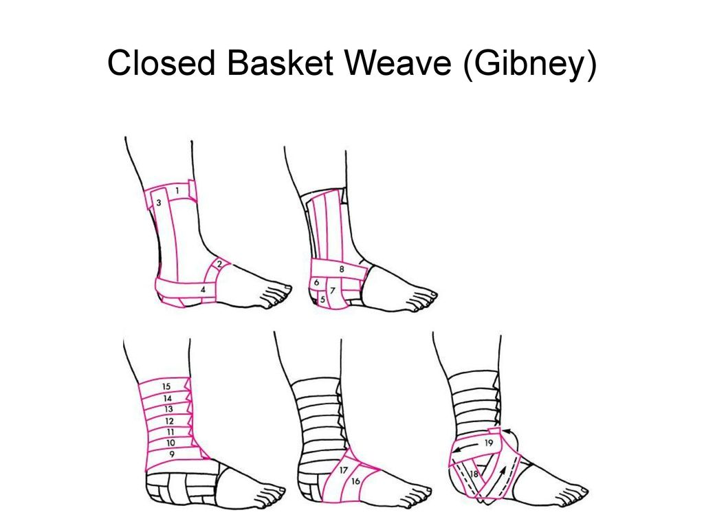 Closed Basket Weave (Gibney)