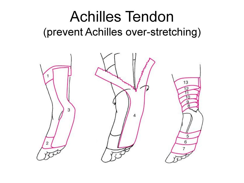 Achilles Tendon (prevent Achilles over-stretching)
