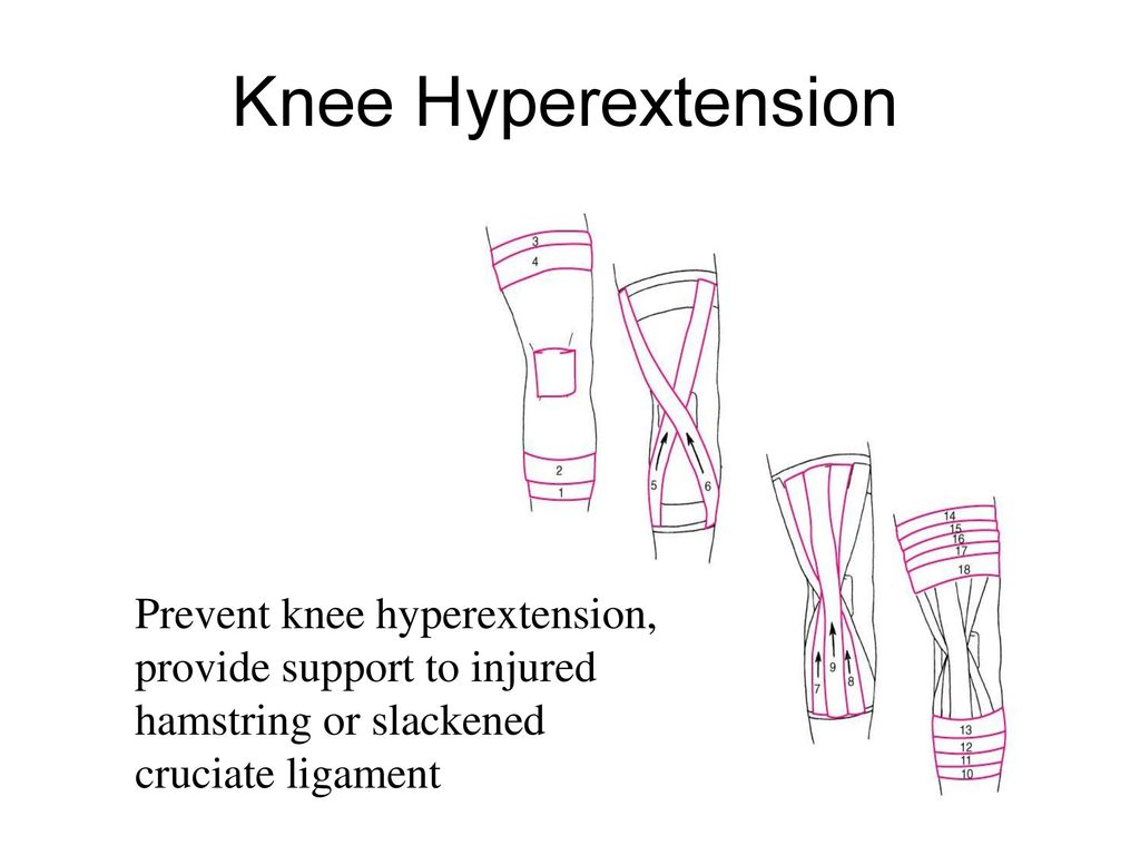 Knee Hyperextension Prevent knee hyperextension, provide support to injured hamstring or slackened cruciate ligament.