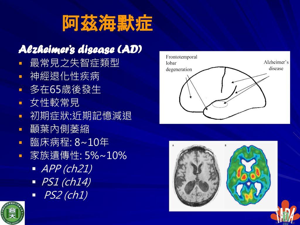 阿茲海默症 Alzheimer's disease (AD) 最常見之失智症類型 神經退化性疾病 多在65歲後發生 女性較常見