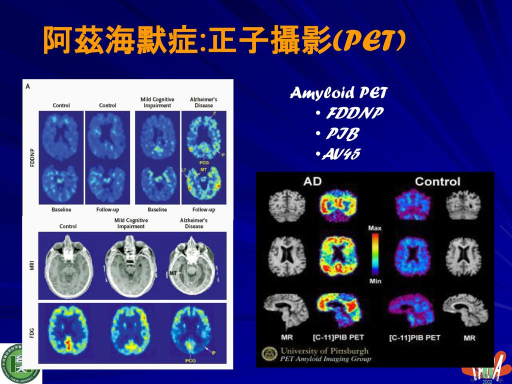 阿茲海默症:正子攝影(PET) Amyloid PET FDDNP PIB AV45
