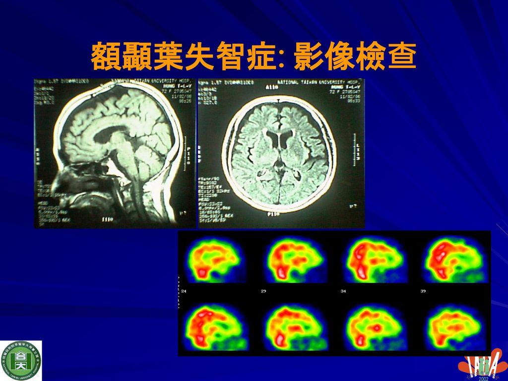 額顳葉失智症: 影像檢查