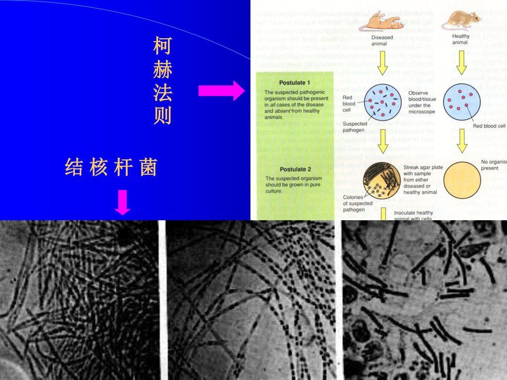 柯赫法则 结 核 杆 菌
