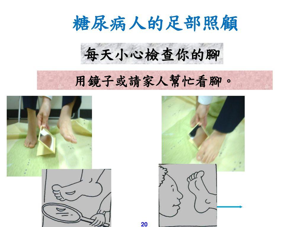 糖尿病人的足部照顧 每天小心檢查你的腳 用鏡子或請家人幫忙看腳。 20