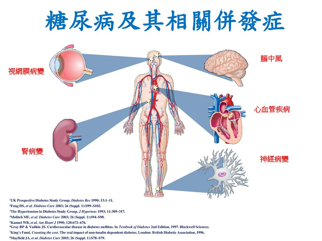 糖尿病及其相關併發症 腦中風 視網膜病變 心血管疾病 腎病變 神經病變