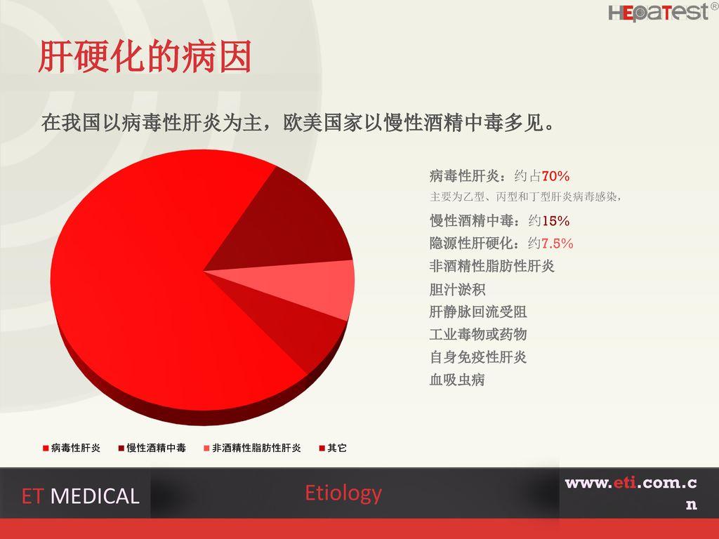肝硬化的病因 Etiology ET MEDICAL 在我国以病毒性肝炎为主,欧美国家以慢性酒精中毒多见。 www.eti.com.cn