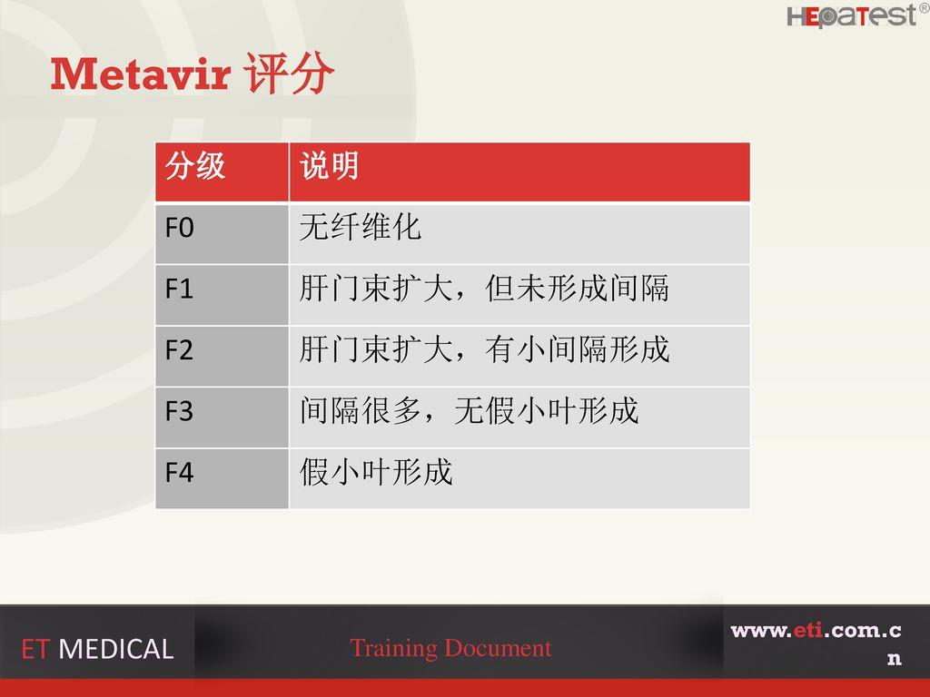 Metavir 评分 分级 说明 F0 无纤维化 F1 肝门束扩大,但未形成间隔 F2 肝门束扩大,有小间隔形成 F3