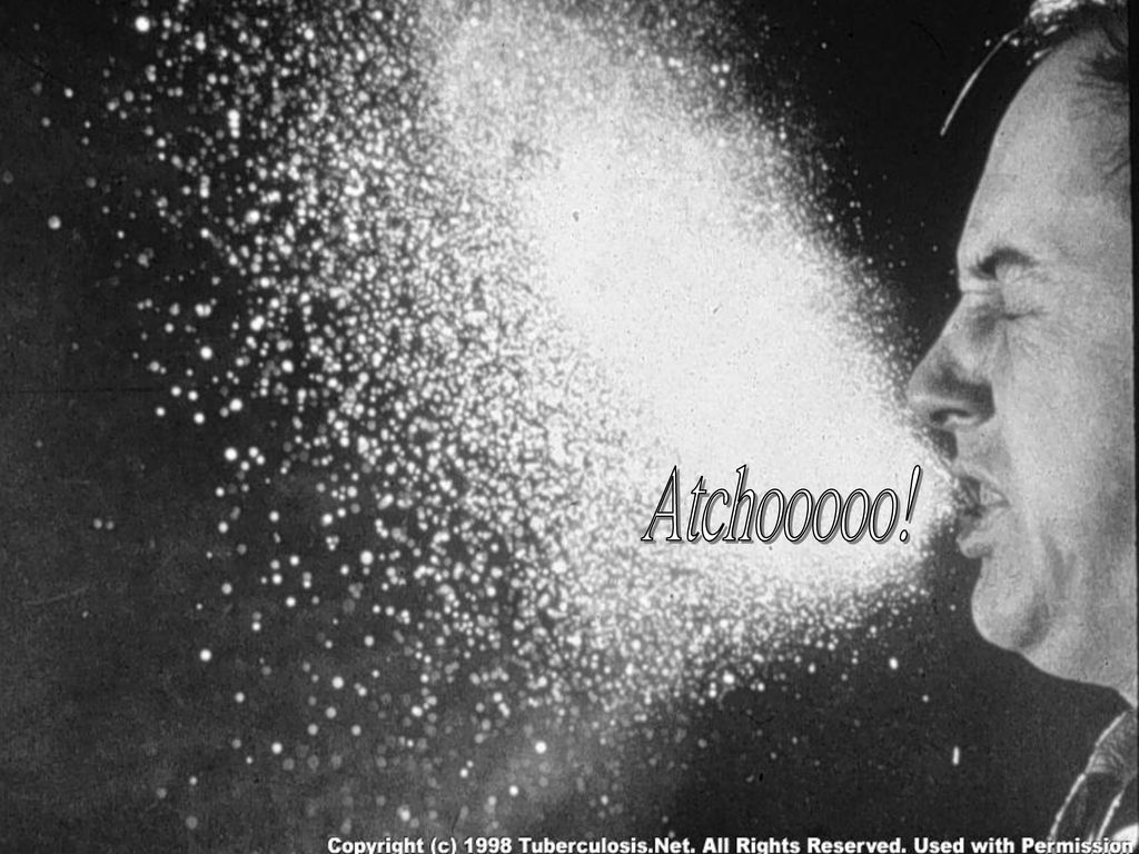Atchooooo!