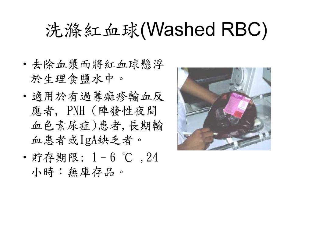 洗滌紅血球(Washed RBC) 去除血漿而將紅血球懸浮於生理食鹽水中。