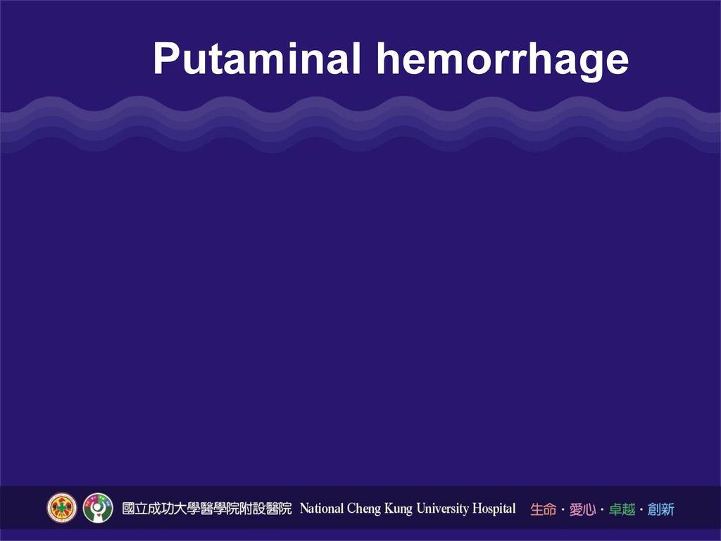 Putaminal hemorrhage