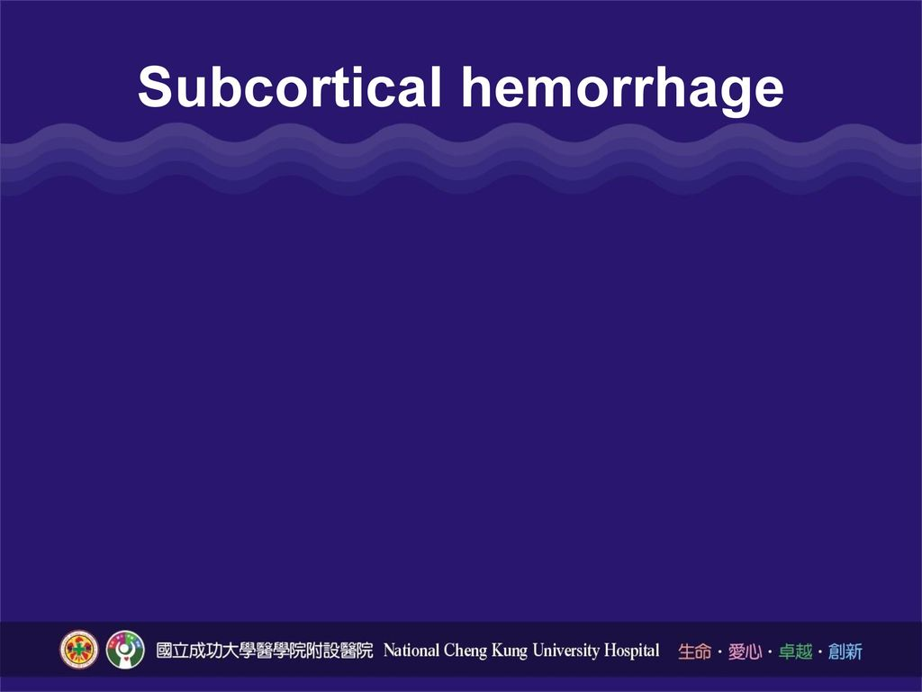 Subcortical hemorrhage