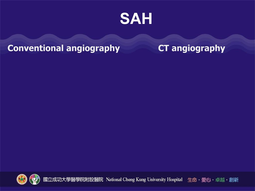 SAH Conventional angiography CT angiography