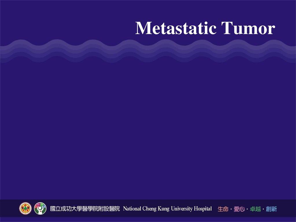Metastatic Tumor