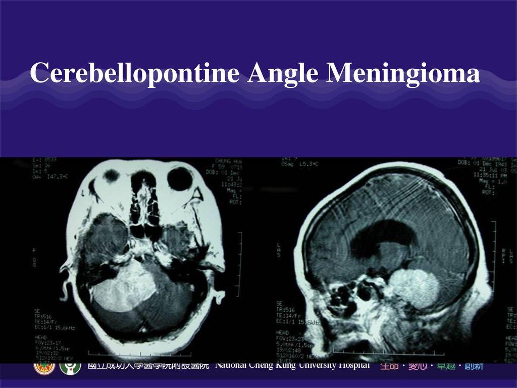 Cerebellopontine Angle Meningioma