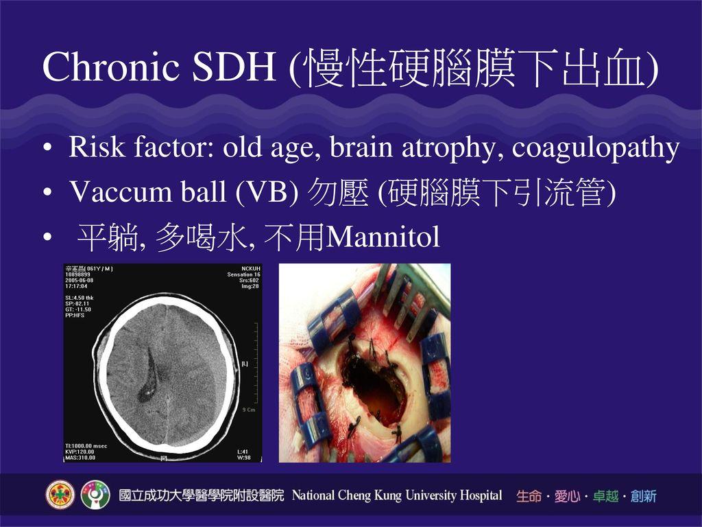 Chronic SDH (慢性硬腦膜下出血)