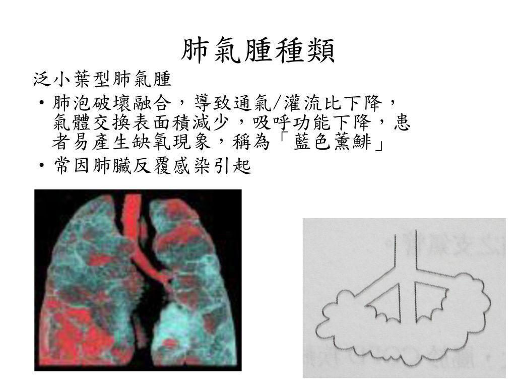 肺氣腫種類 泛小葉型肺氣腫 肺泡破壞融合,導致通氣/灌流比下降,氣體交換表面積減少,吸呼功能下降,患者易產生缺氧現象,稱為「藍色薰鯡」