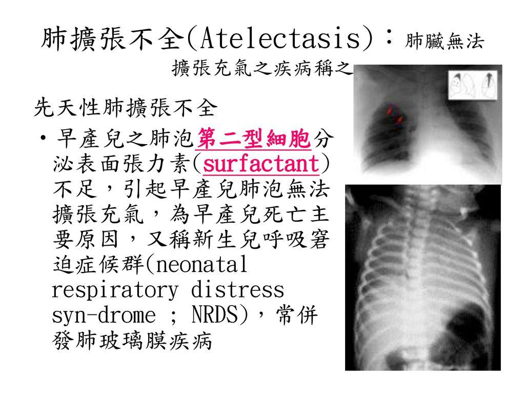 肺擴張不全(Atelectasis):肺臟無法擴張充氣之疾病稱之