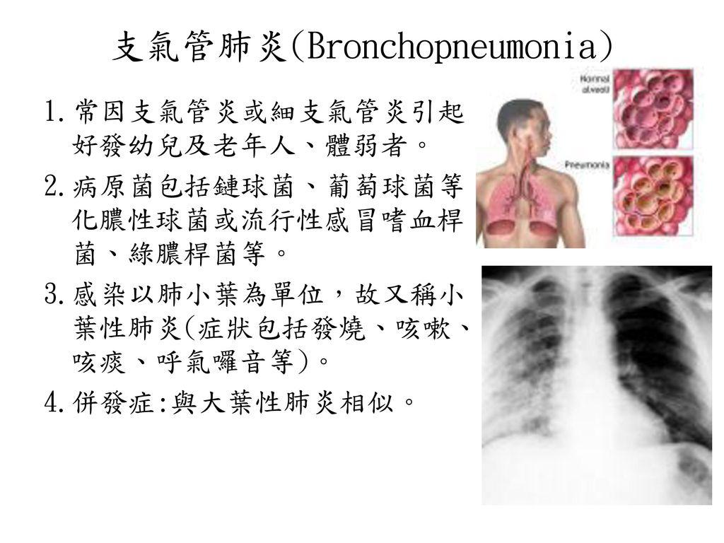 支氣管肺炎(Bronchopneumonia)