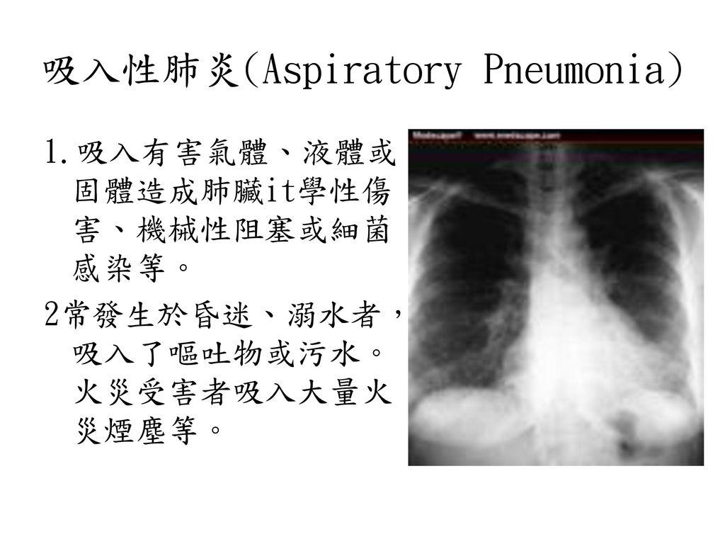 吸入性肺炎(Aspiratory Pneumonia)