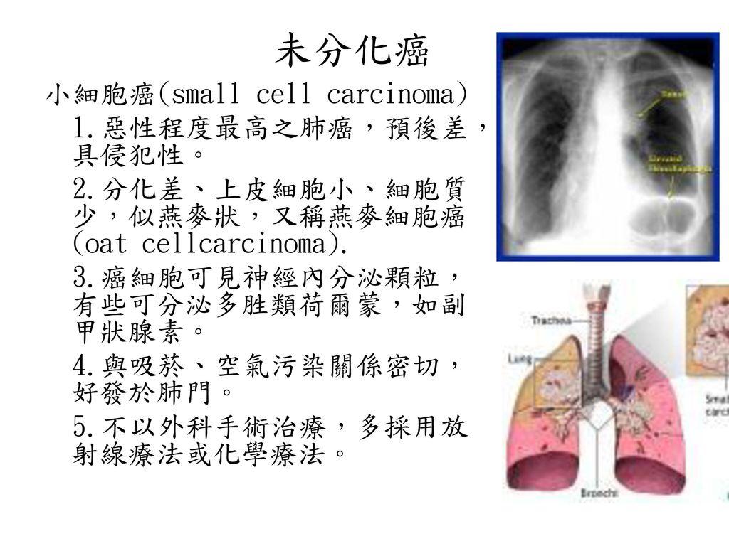 未分化癌 小細胞癌(small cell carcinoma) 1.惡性程度最高之肺癌,預後差,具侵犯性。