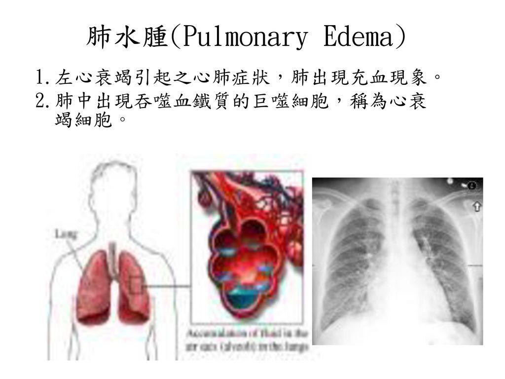 肺水腫(Pulmonary Edema) 1.左心衰竭引起之心肺症狀,肺出現充血現象。 2.肺中出現吞噬血鐵質的巨噬細胞,稱為心衰竭細胞。