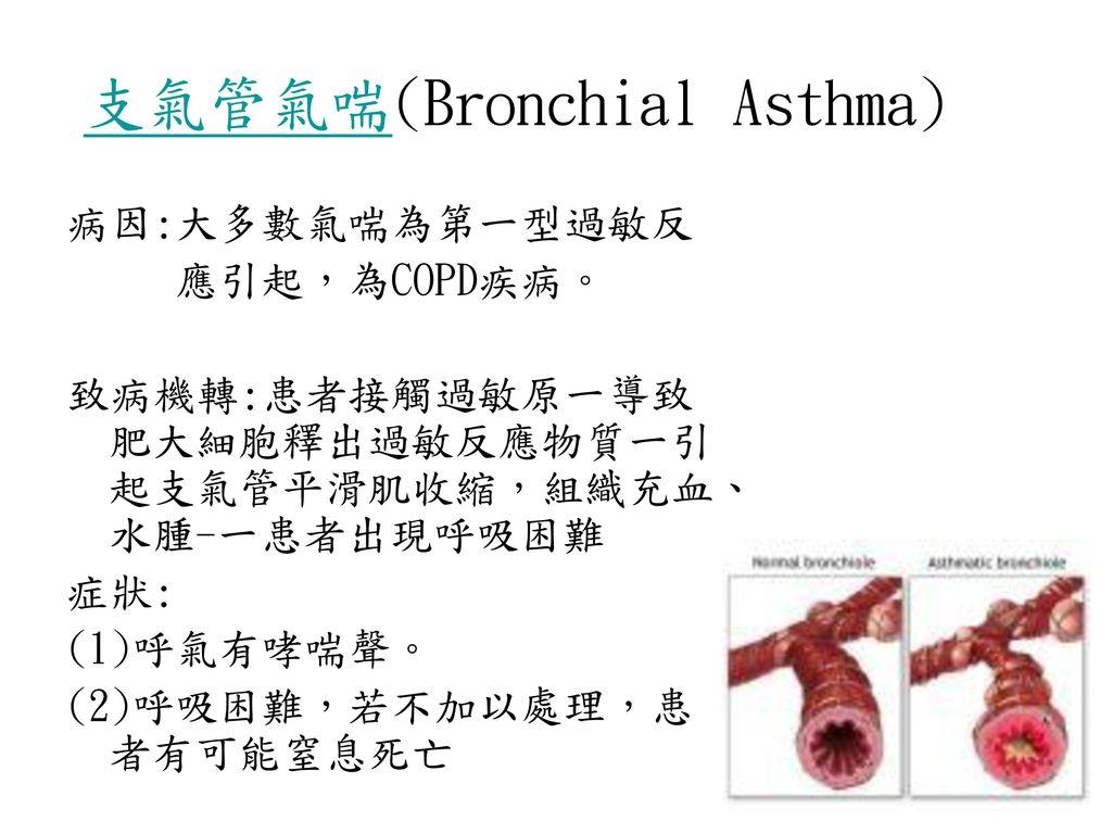 支氣管氣喘(Bronchial Asthma)
