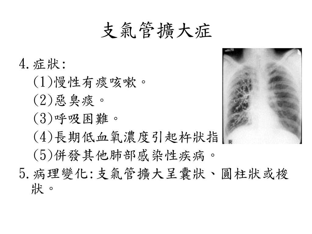 支氣管擴大症 4.症狀: (1)慢性有痰咳嗽。 (2)惡臭痰。 (3)呼吸困難。 (4)長期低血氧濃度引起杵狀指。