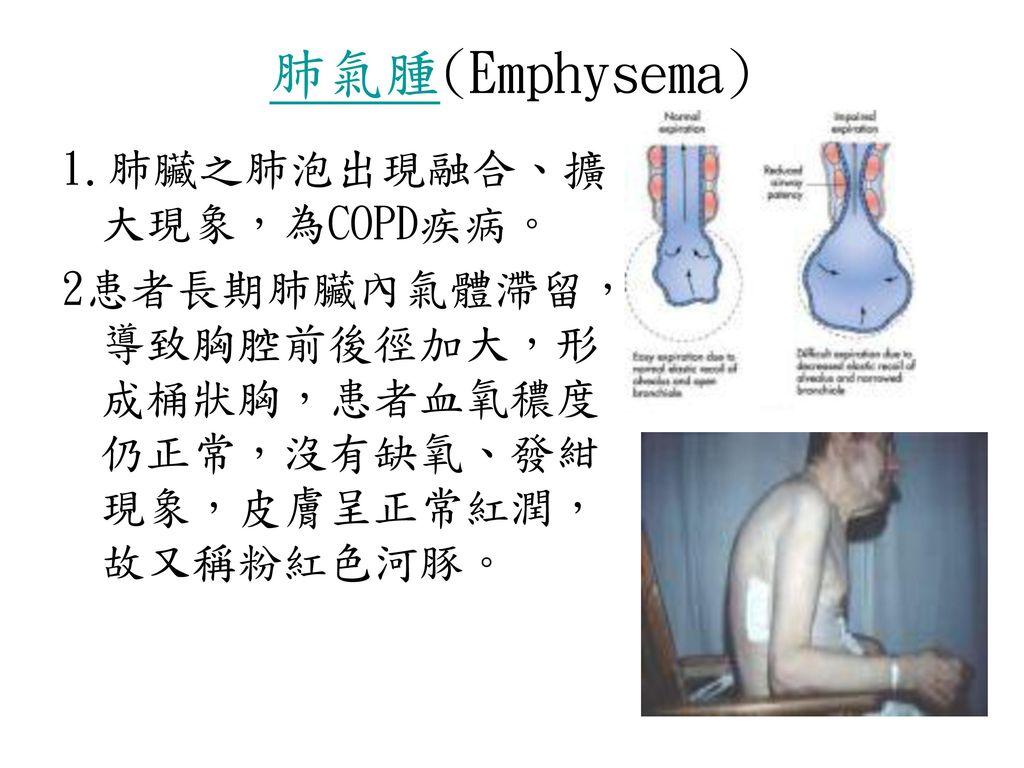 肺氣腫(Emphysema) 1.肺臟之肺泡出現融合、擴大現象,為COPD疾病。