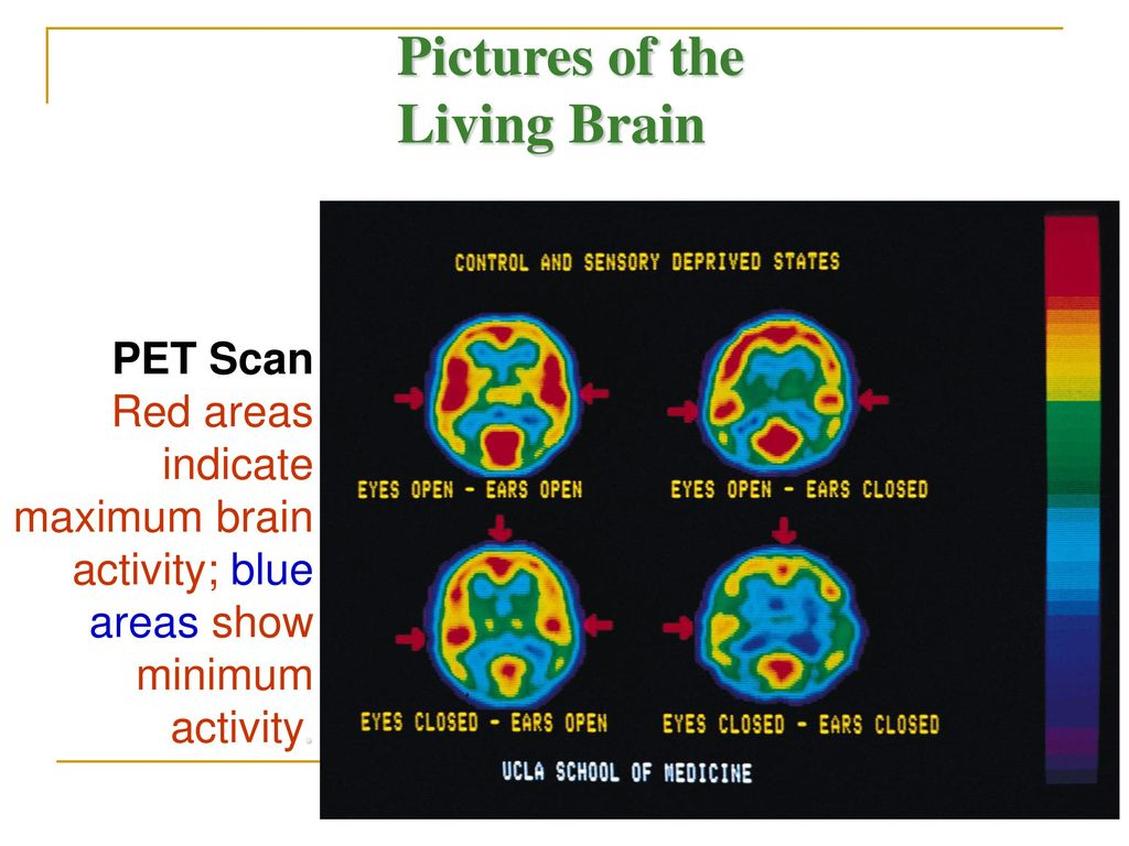 Pictures of the Living Brain PET Scan