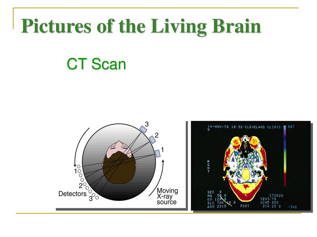 Pictures of the Living Brain