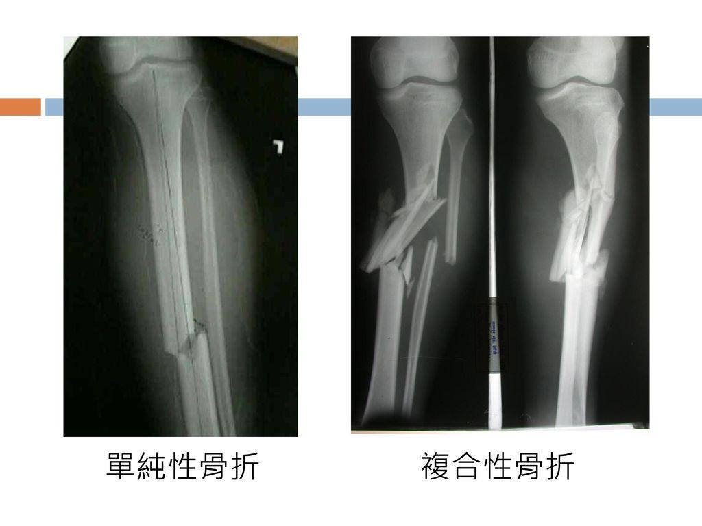 單純性骨折 複合性骨折