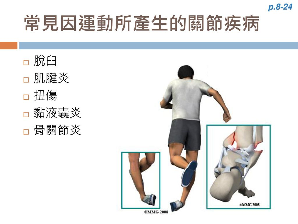 p.8-24 常見因運動所產生的關節疾病 脫臼 肌腱炎 扭傷 黏液囊炎 骨關節炎