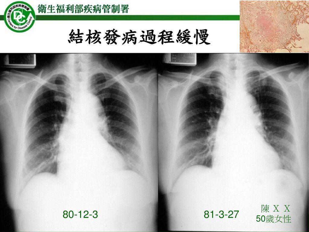 結核發病過程緩慢 陳 X X 50歲女性 80-12-3 81-3-27