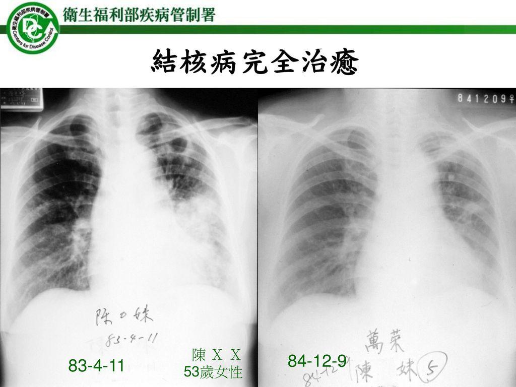 結核病完全治癒 陳 X X 53歲女性 84-12-9 83-4-11