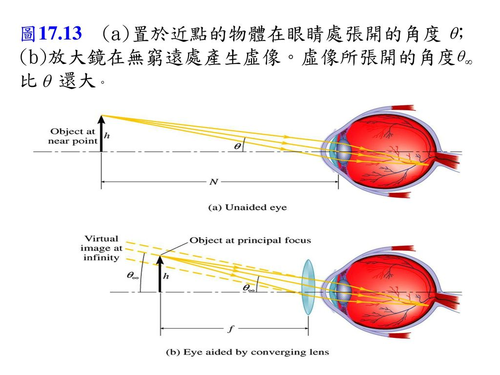 圖17.13 (a)置於近點的物體在眼睛處張開的角度 ;